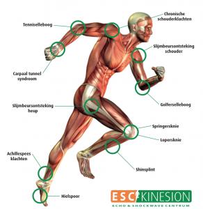 Shockwave therapie klachten SMC Rijnland fysiotherapeuten